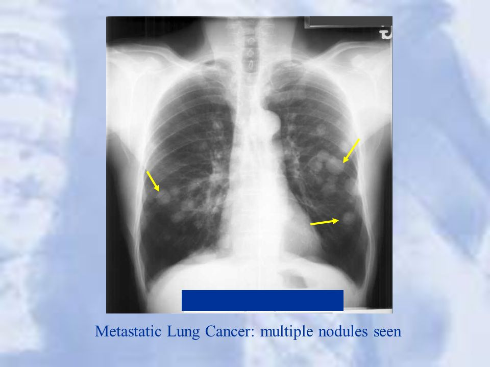 Metastatic Lung Cancer: multiple nodules seen