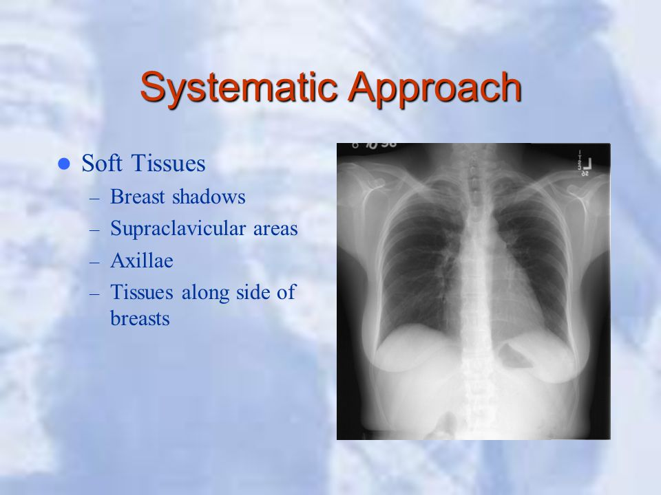 Systematic Approach Soft Tissues Breast shadows Supraclavicular areas