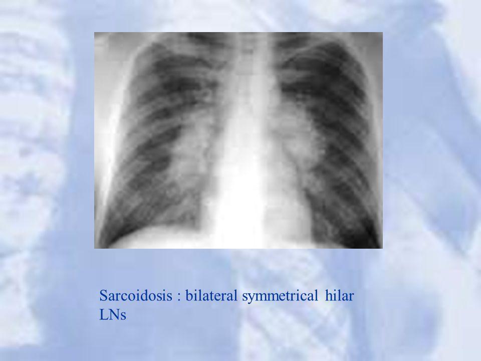 Sarcoidosis : bilateral symmetrical hilar LNs