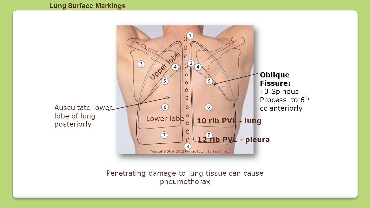 Penetrating damage to lung tissue can cause pneumothorax