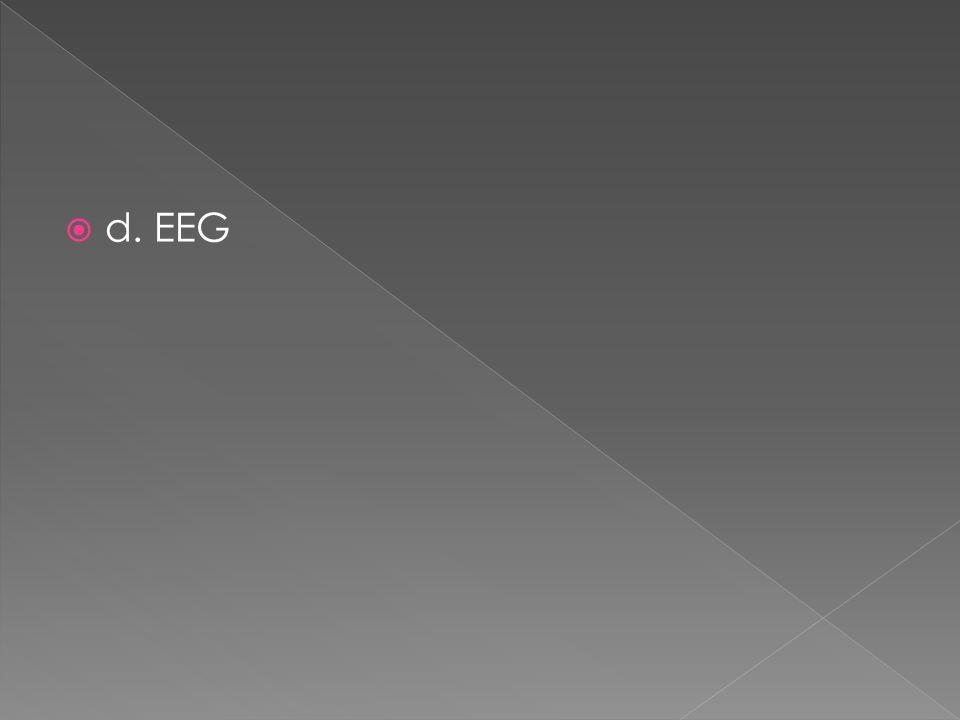 d. EEG