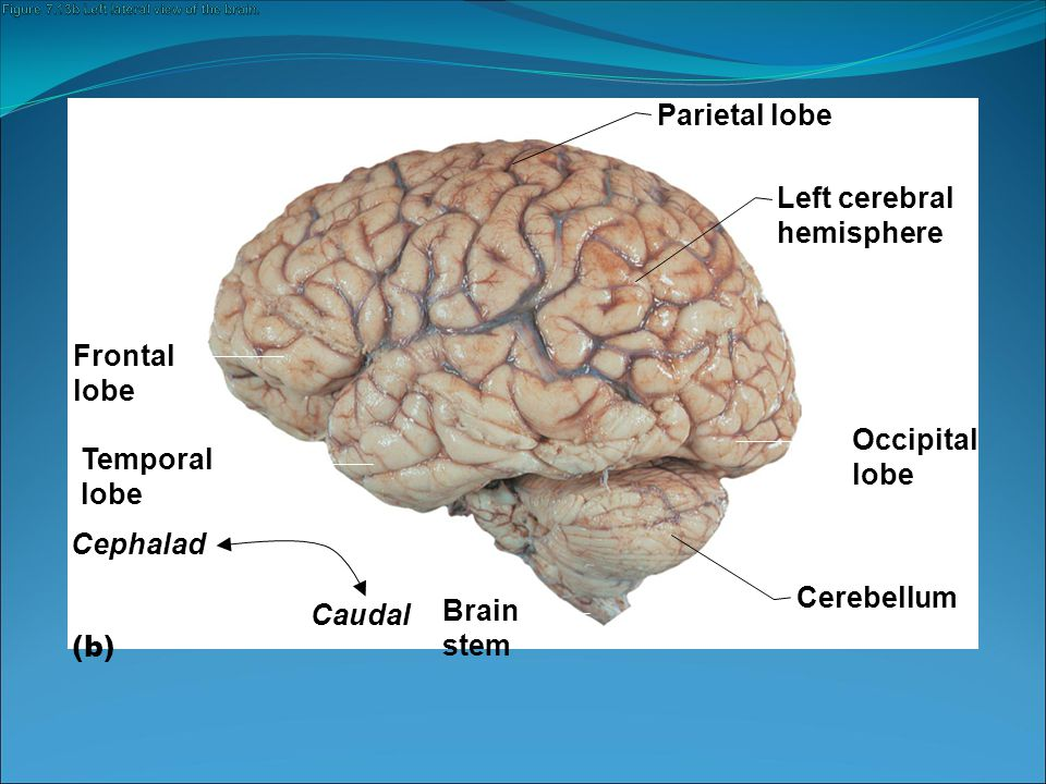 Figure 7.13b Left lateral view of the brain.
