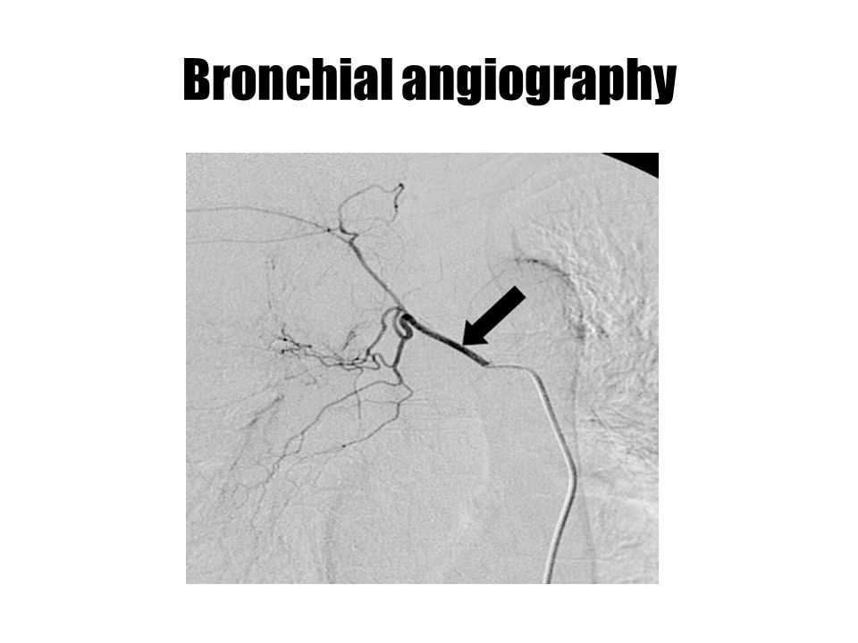 Bronchial angiography