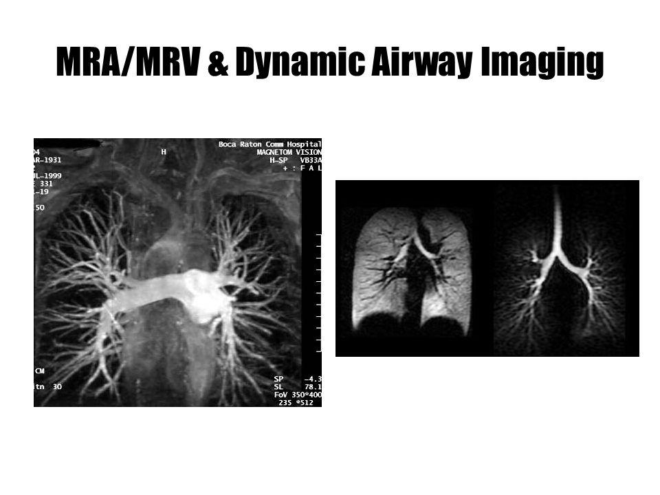 MRA/MRV & Dynamic Airway Imaging