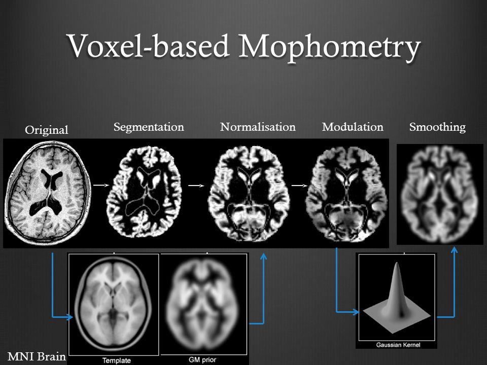 Voxel-based Mophometry