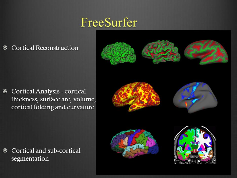 FreeSurfer Cortical Reconstruction