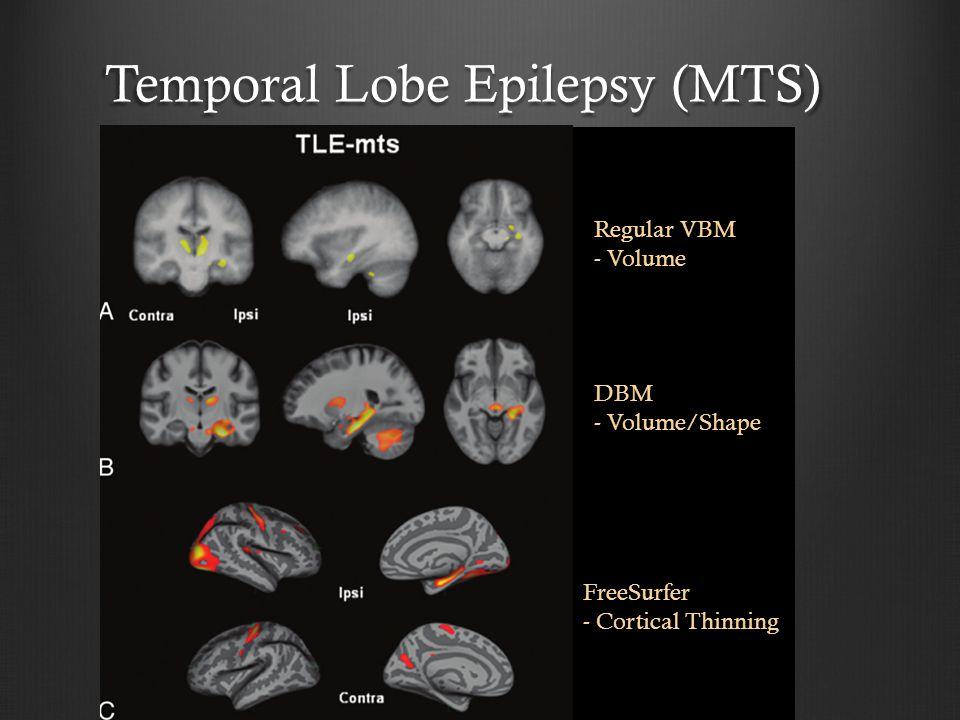 Temporal Lobe Epilepsy (MTS)