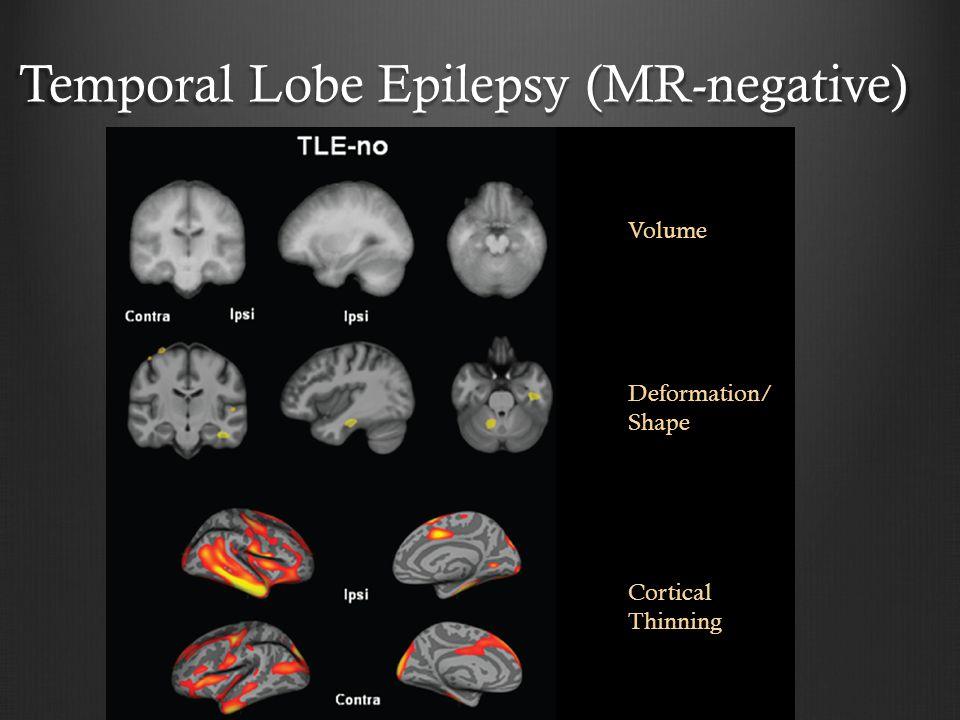 Temporal Lobe Epilepsy (MR-negative)