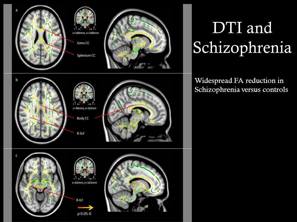 DTI and Schizophrenia Widespread FA reduction in Schizophrenia versus controls