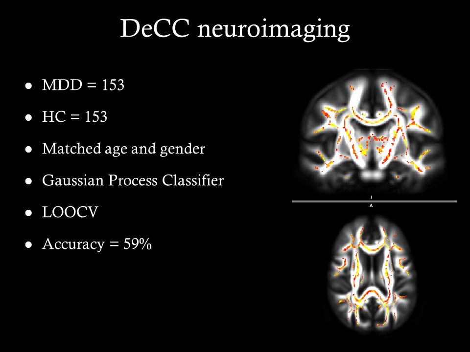 DeCC neuroimaging MDD = 153 HC = 153 Matched age and gender