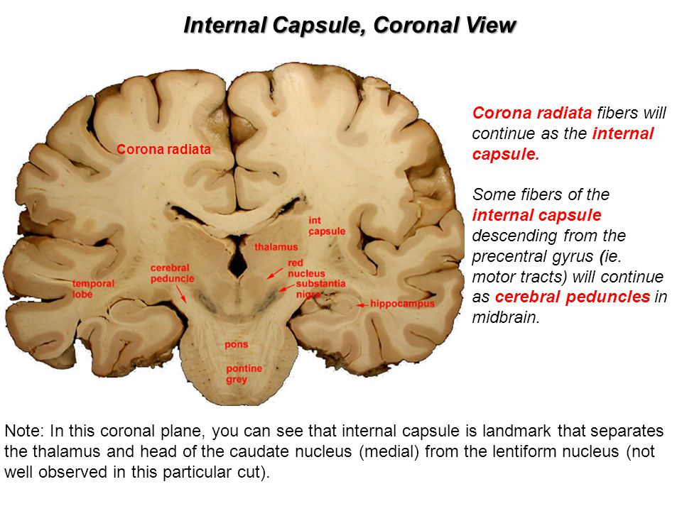Internal Capsule, Coronal View