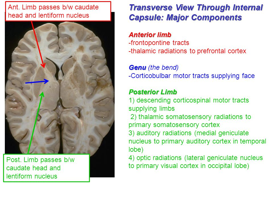 Transverse View Through Internal Capsule: Major Components