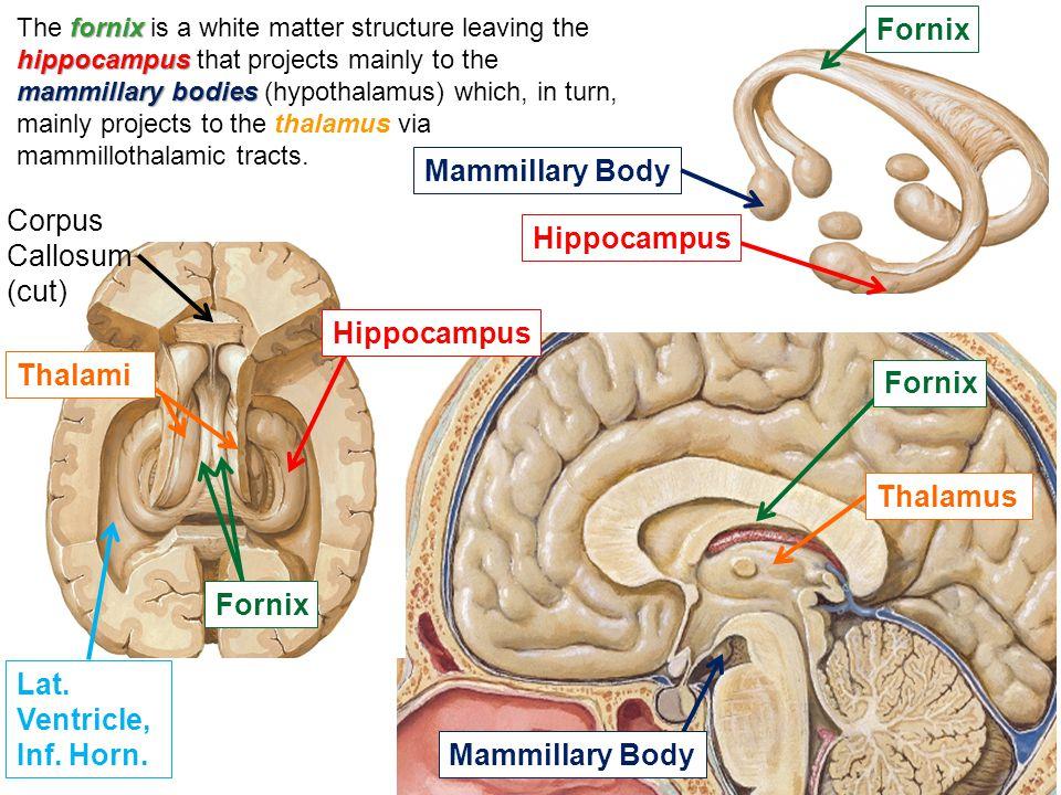 Fornix Mammillary Body Corpus Callosum (cut) Hippocampus Hippocampus