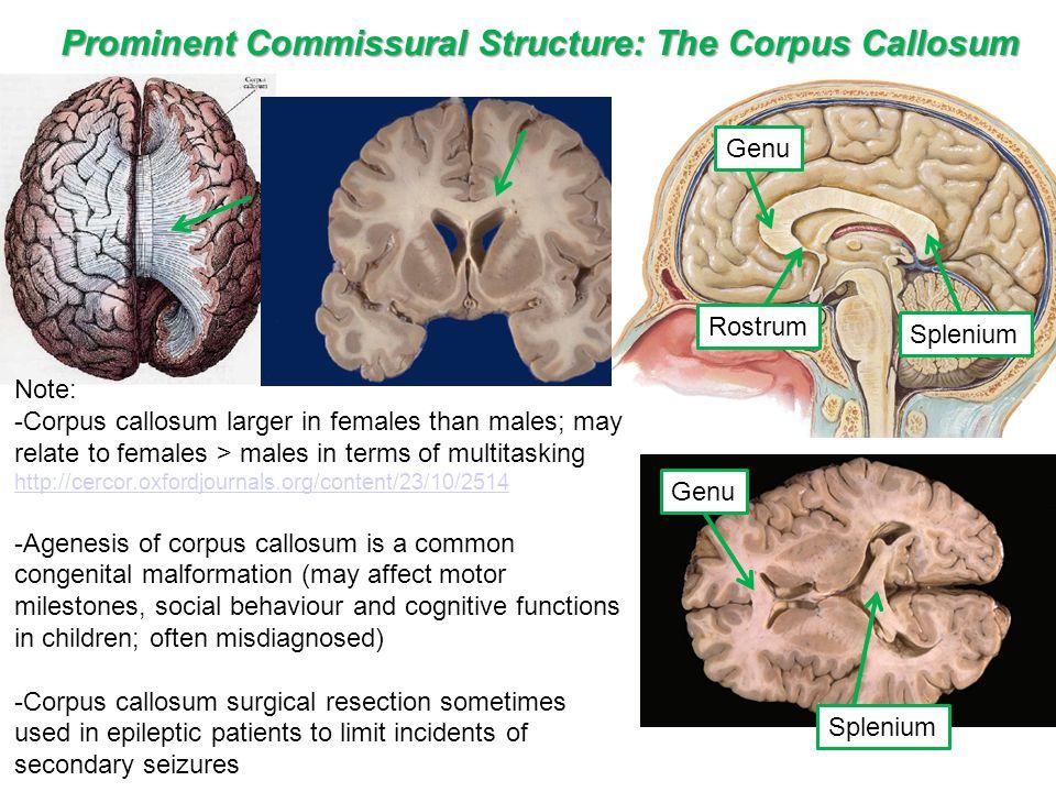 Prominent Commissural Structure: The Corpus Callosum