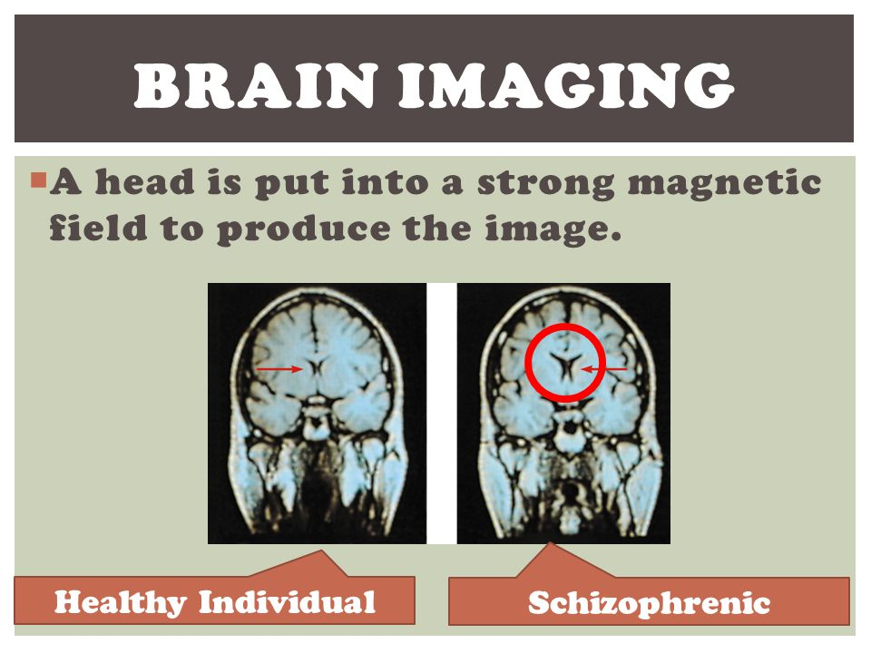 Brain Imaging A head is put into a strong magnetic field to produce the image. Healthy Individual.