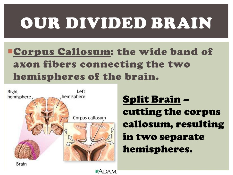 Our Divided brain Corpus Callosum: the wide band of axon fibers connecting the two hemispheres of the brain.
