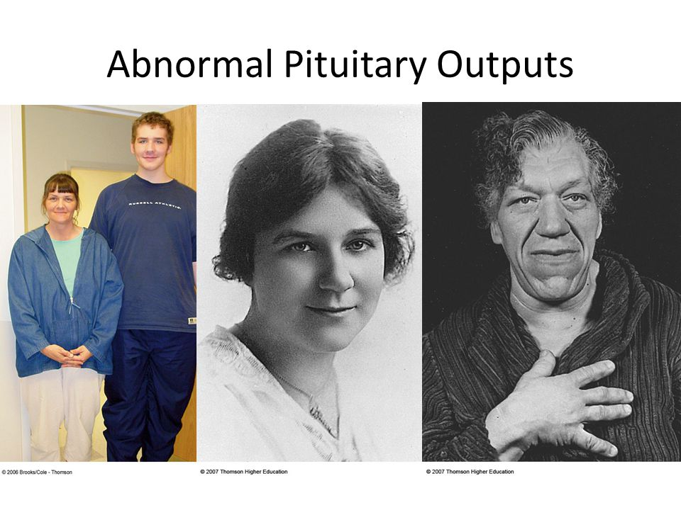 Abnormal Pituitary Outputs
