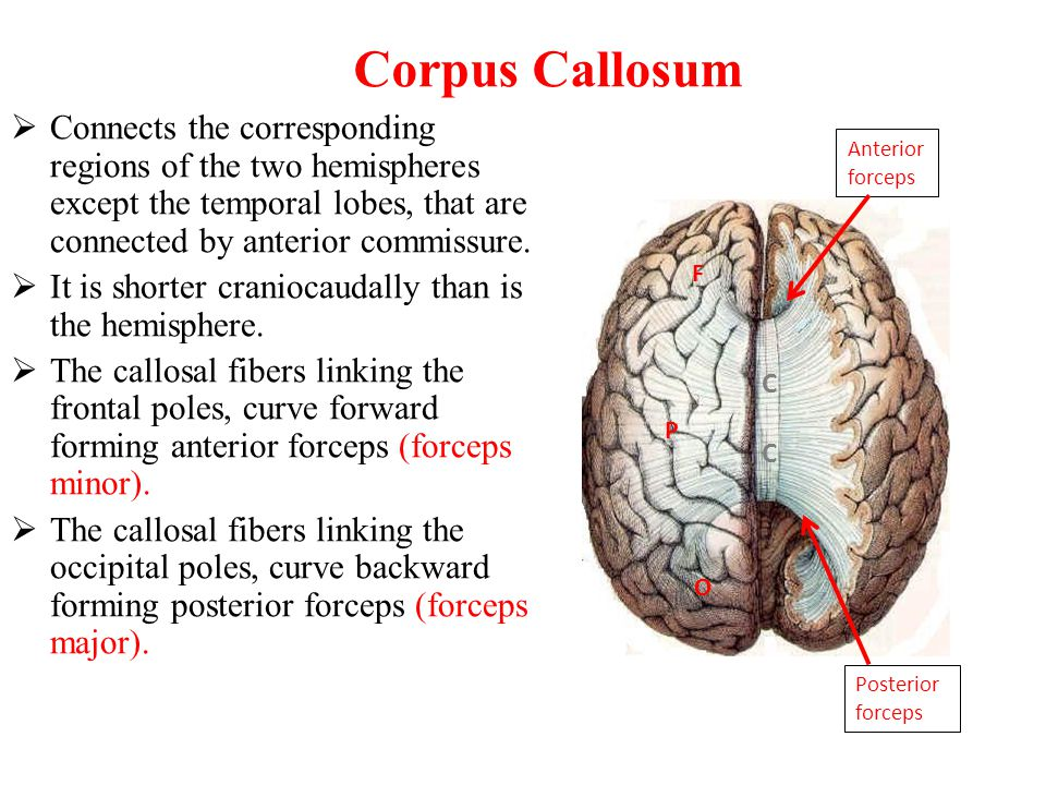 Corpus Callosum Connects the corresponding regions of the two hemispheres except the temporal lobes, that are connected by anterior commissure.