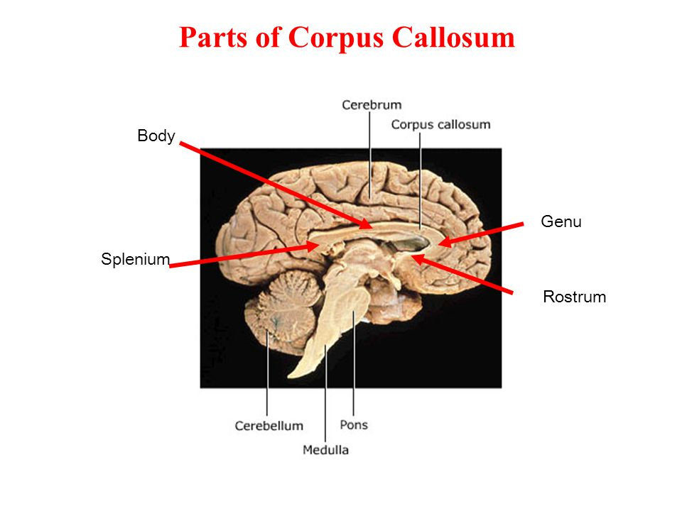 Parts of Corpus Callosum