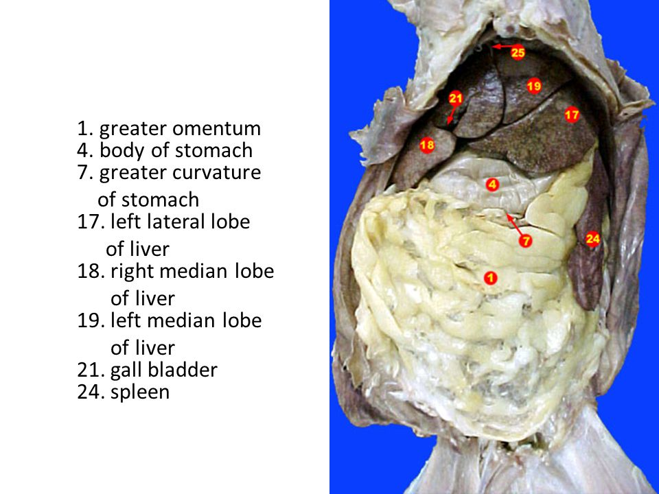 1. greater omentum 4. body of stomach 7