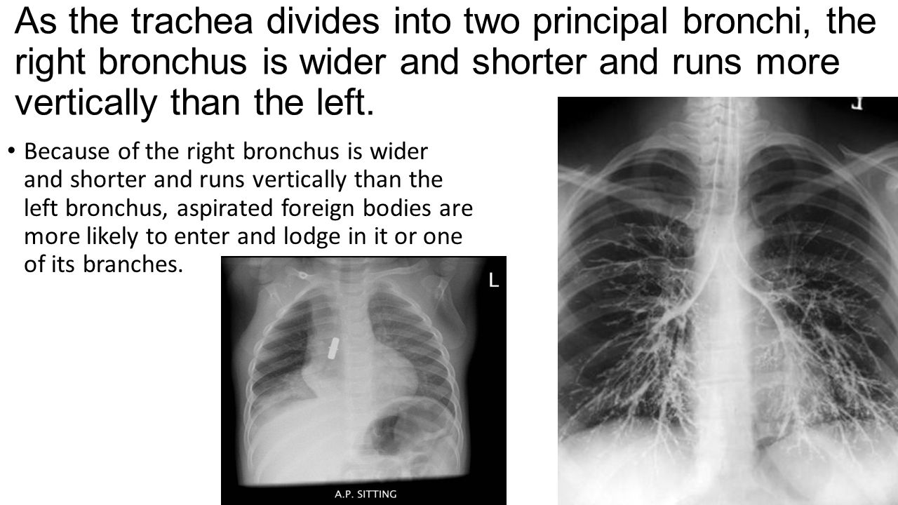 As the trachea divides into two principal bronchi, the right bronchus is wider and shorter and runs more vertically than the left.