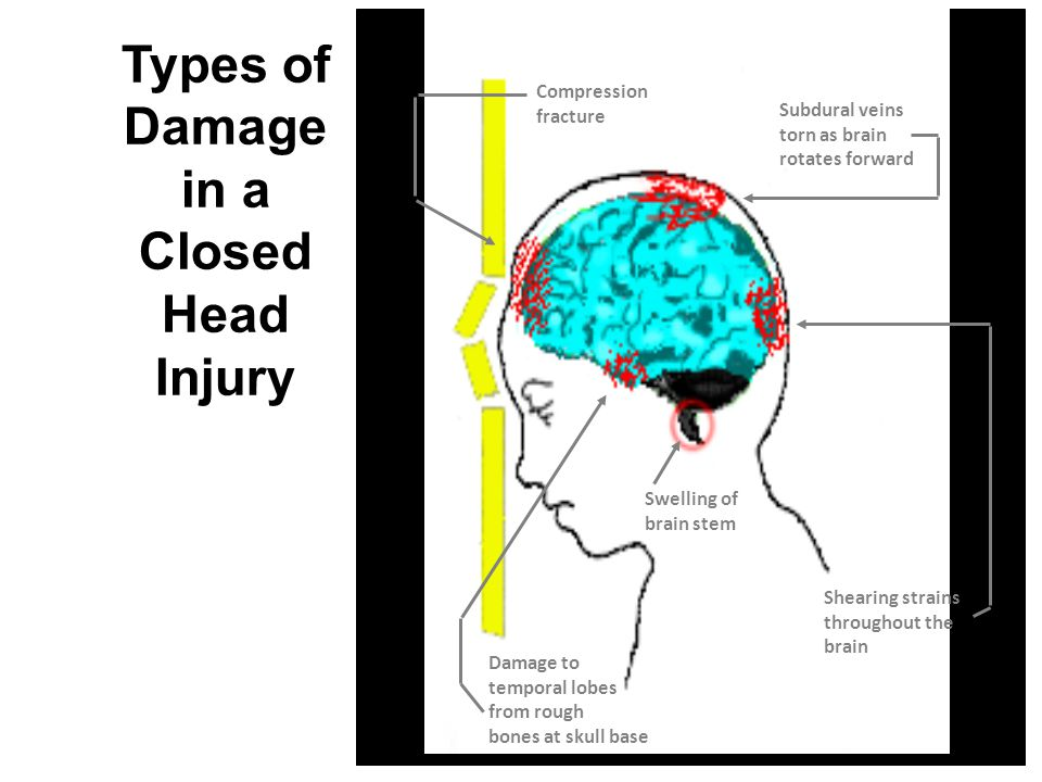 Traumatic Brain Injury (9-27-07)