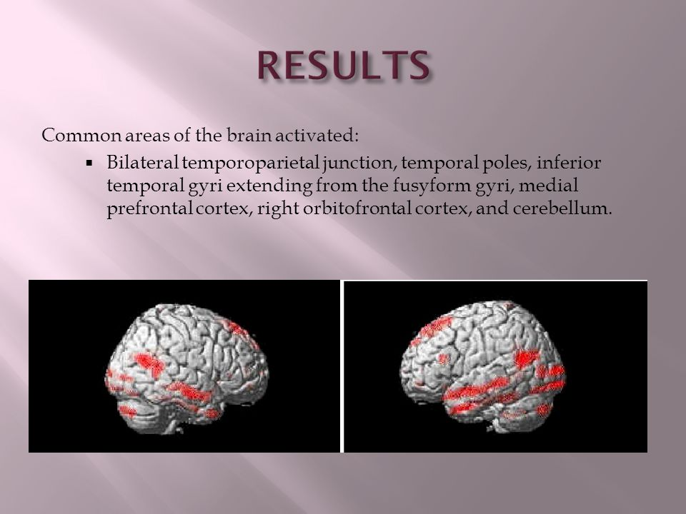 RESULTS Common areas of the brain activated: