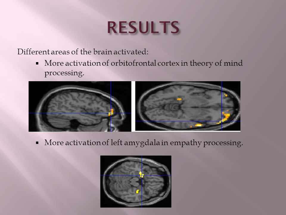 RESULTS Different areas of the brain activated: