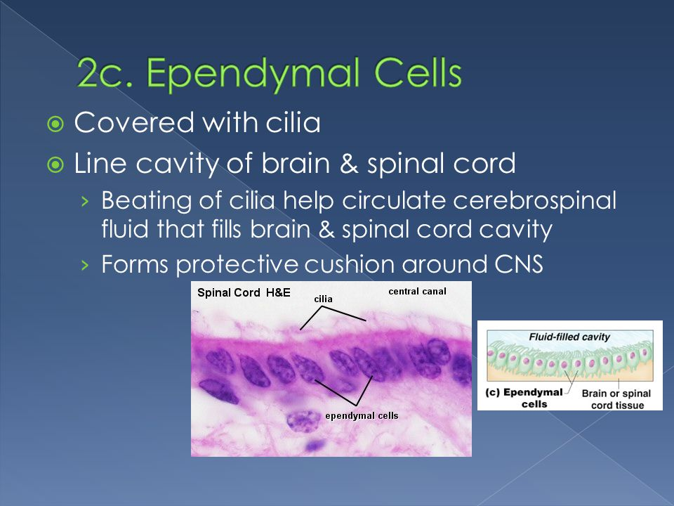 2c. Ependymal Cells Covered with cilia
