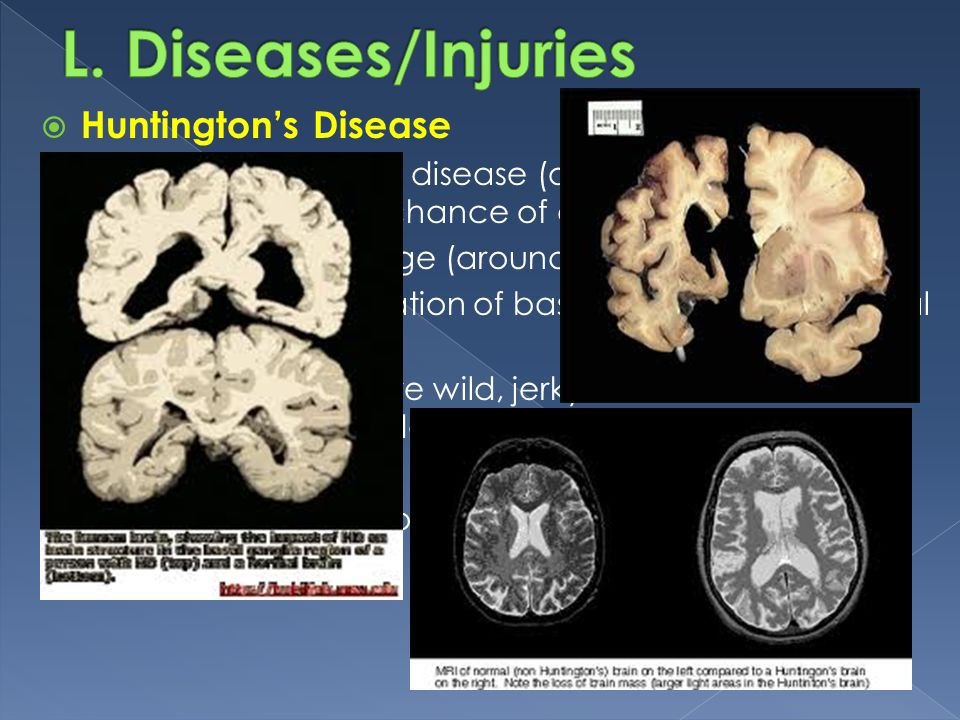 L. Diseases/Injuries Huntington's Disease