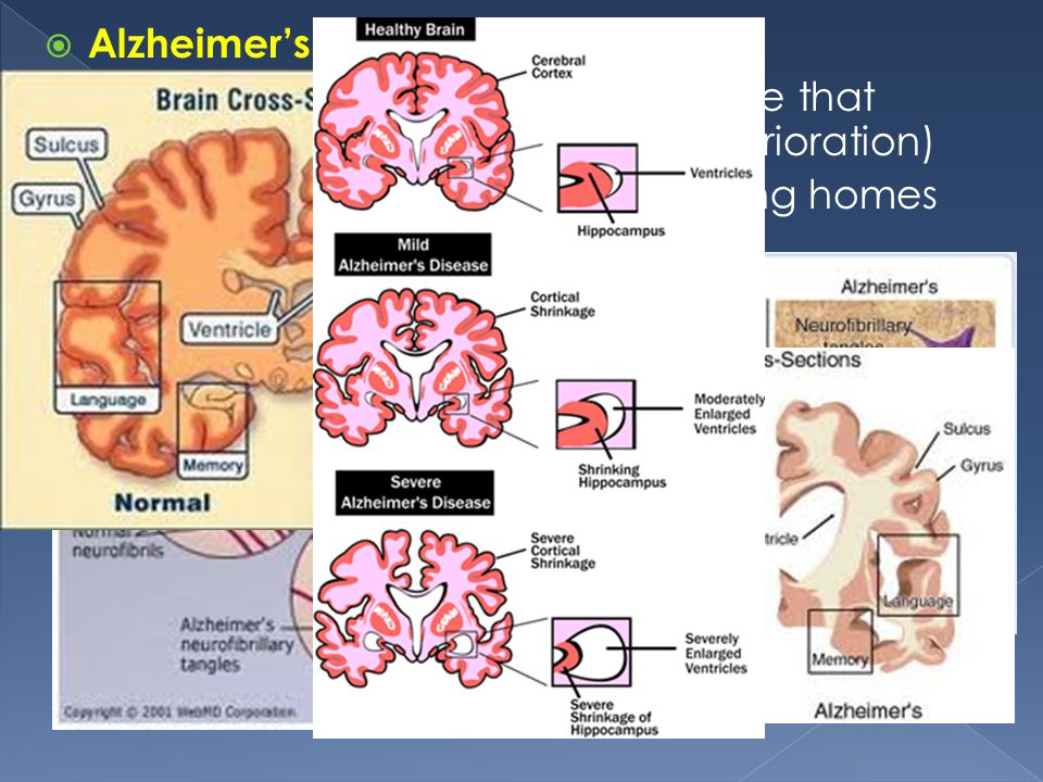 Alzheimer's Progressive degenerative disease that results in dementia (mental deterioration)
