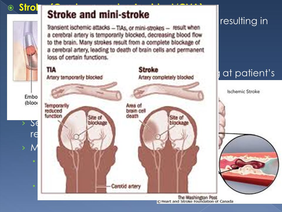 Stroke (Cerebrovascular Accident/CVA)