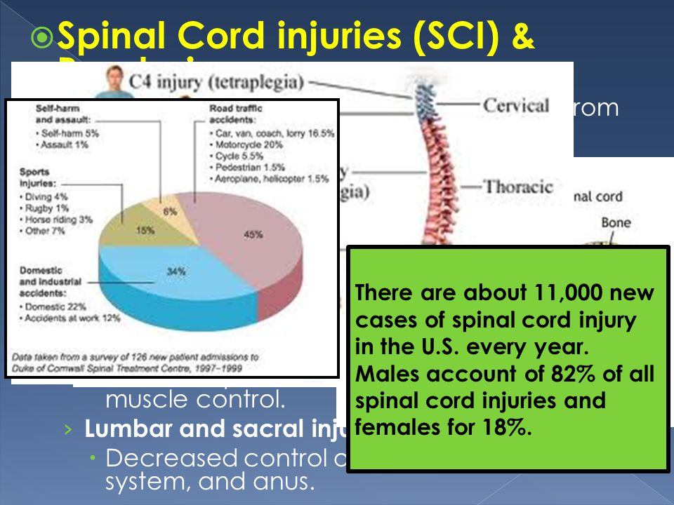 Spinal Cord injuries (SCI) & Paralysis