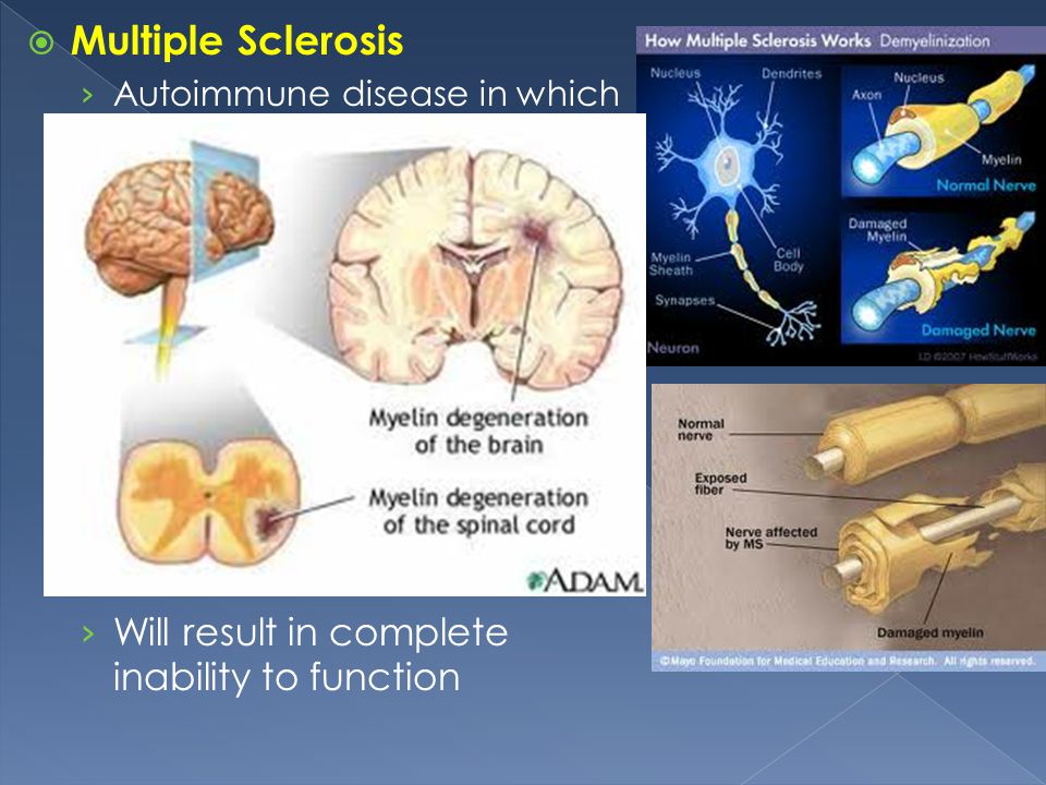 Multiple Sclerosis Will result in complete inability to function