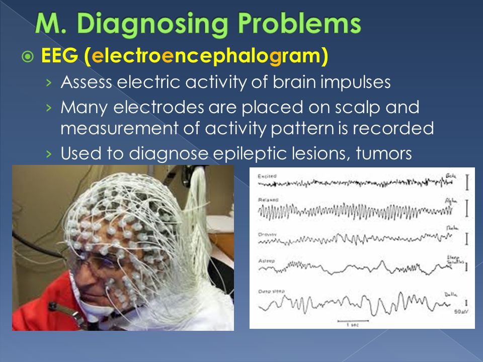 M. Diagnosing Problems EEG (electroencephalogram)