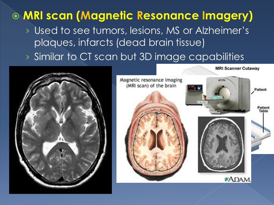 MRI scan (Magnetic Resonance Imagery)