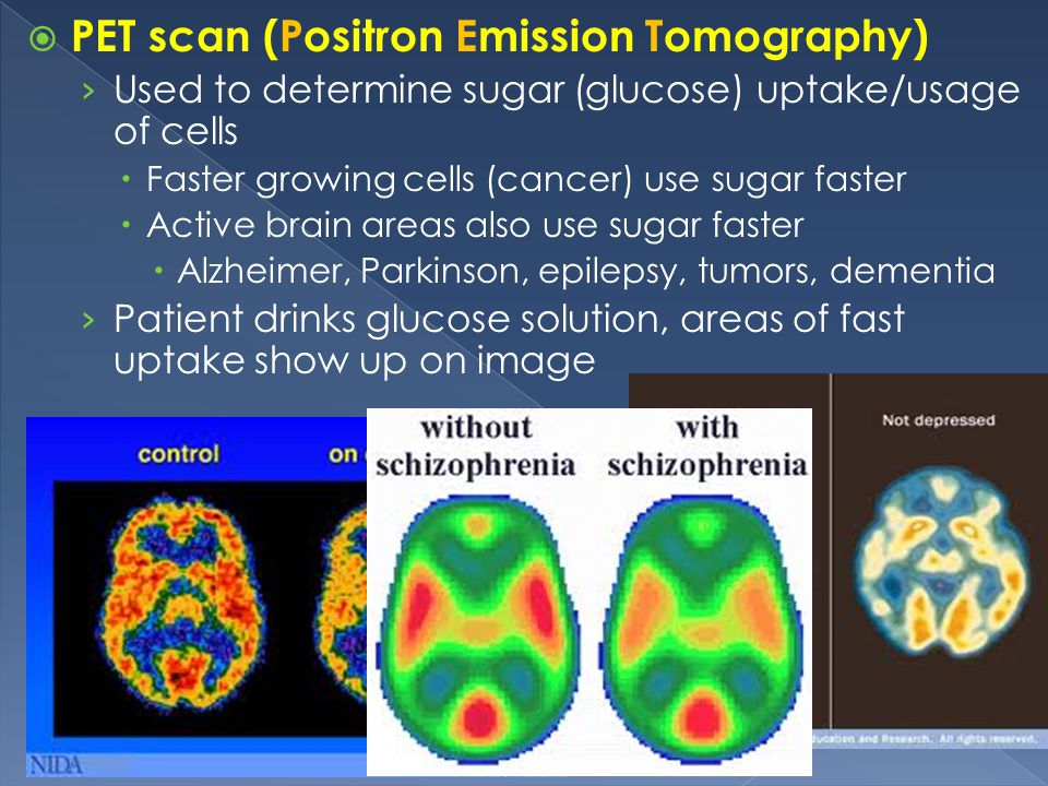 PET scan (Positron Emission Tomography)