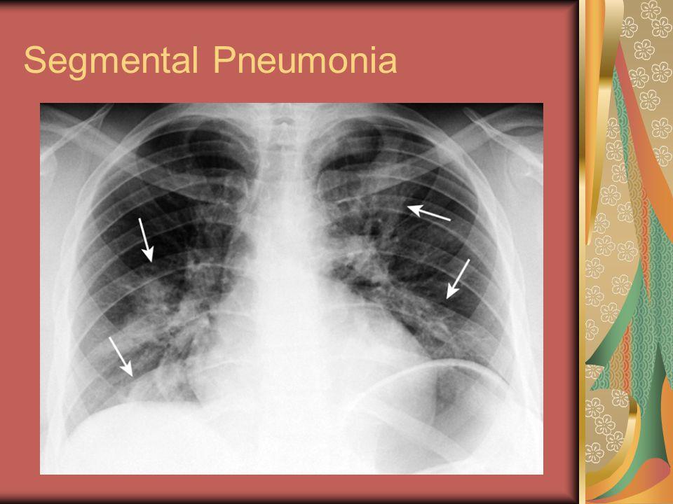 Segmental Pneumonia