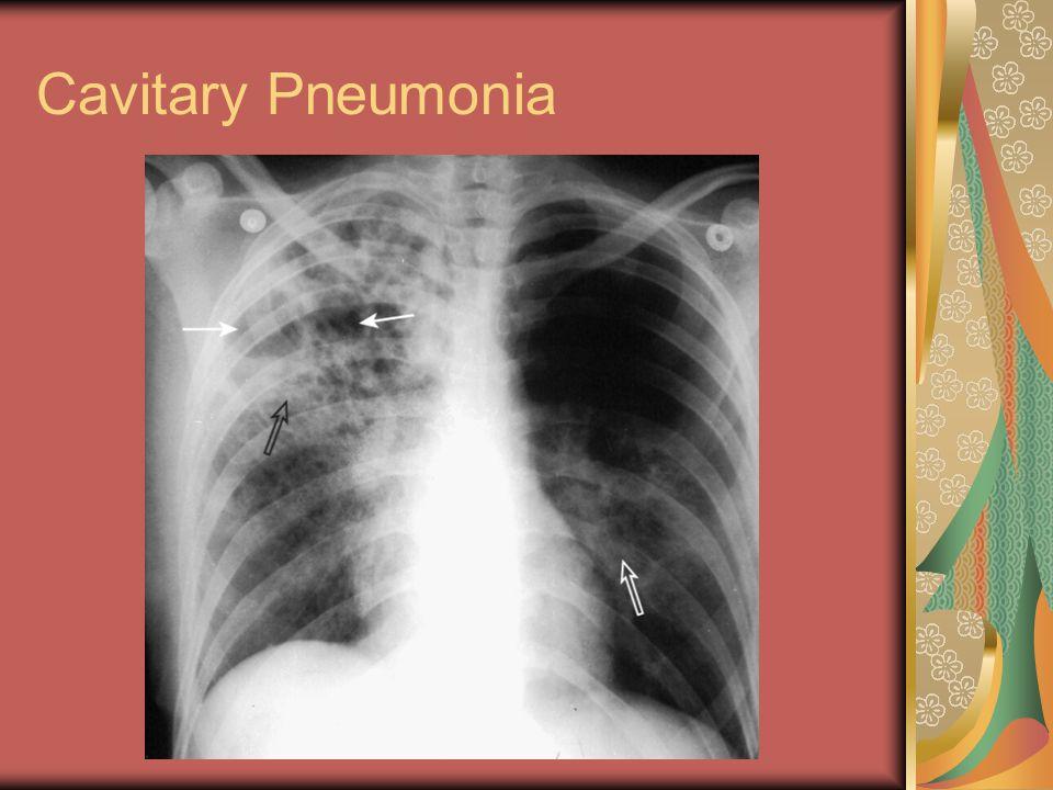 Cavitary Pneumonia