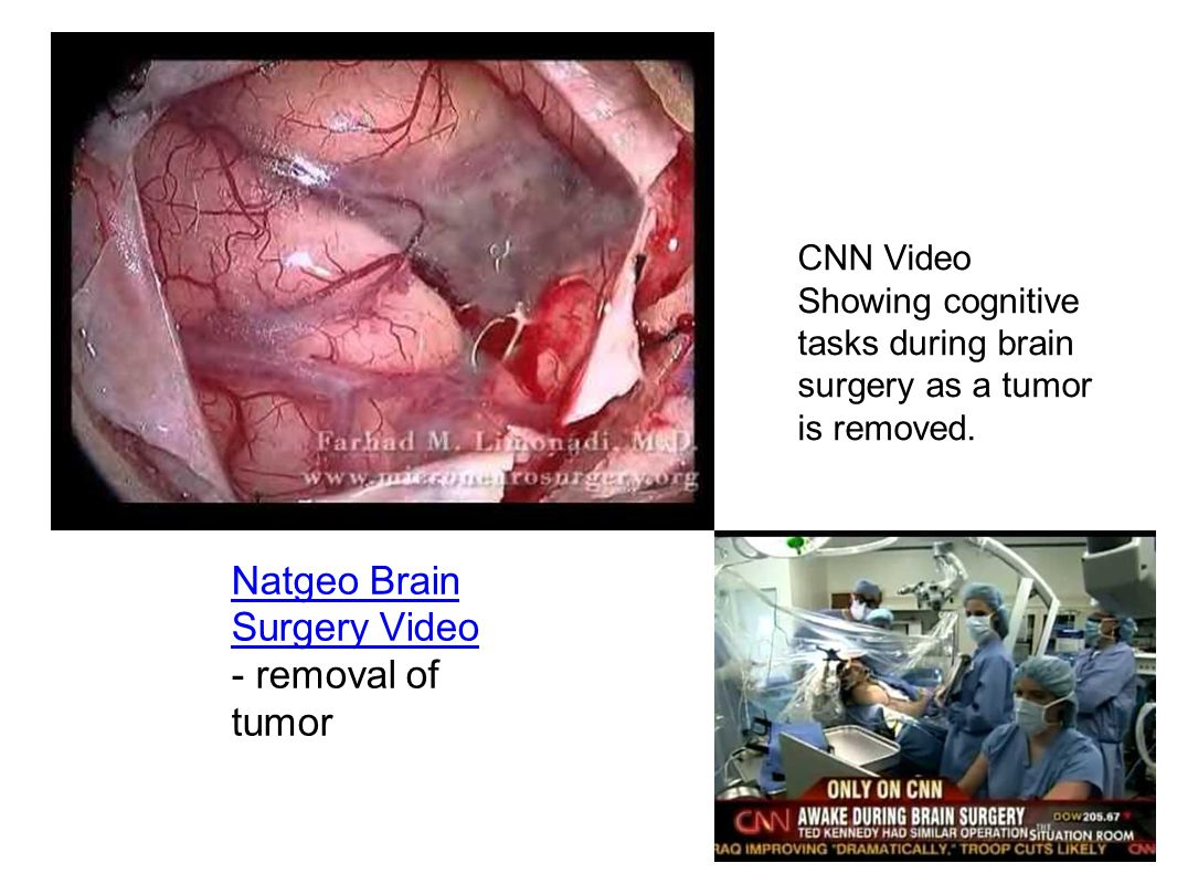Natgeo Brain Surgery Video - removal of tumor