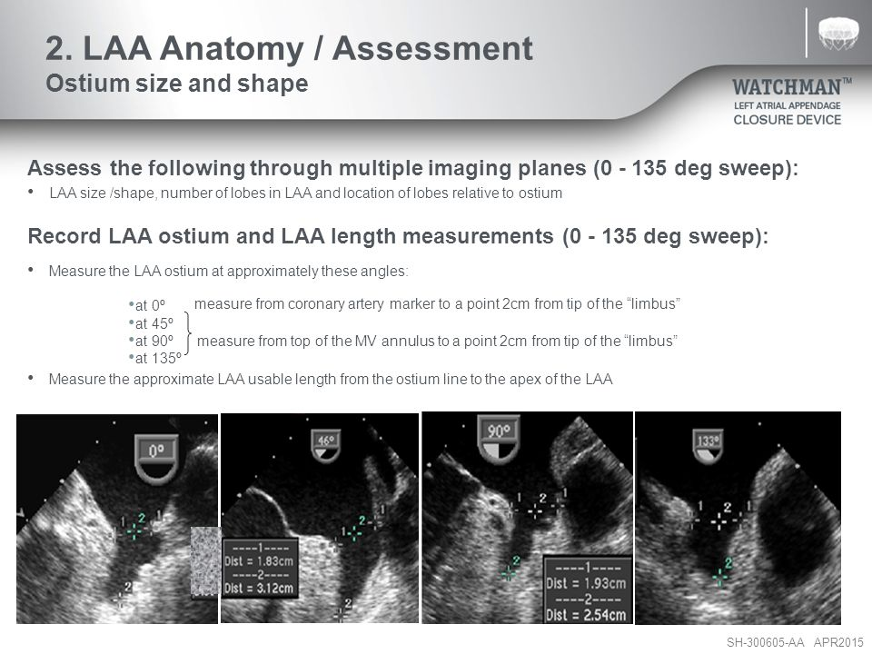 2. LAA Anatomy / Assessment Ostium size and shape