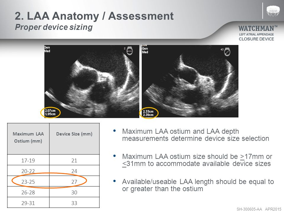 2. LAA Anatomy / Assessment Proper device sizing