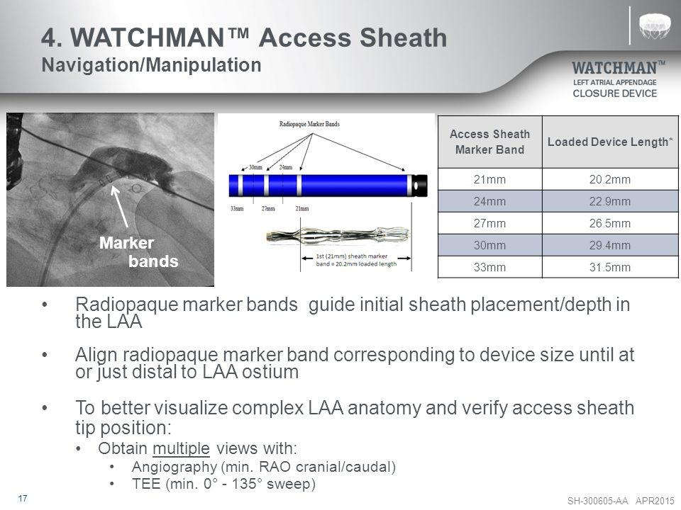 4. WATCHMAN™ Access Sheath Navigation/Manipulation