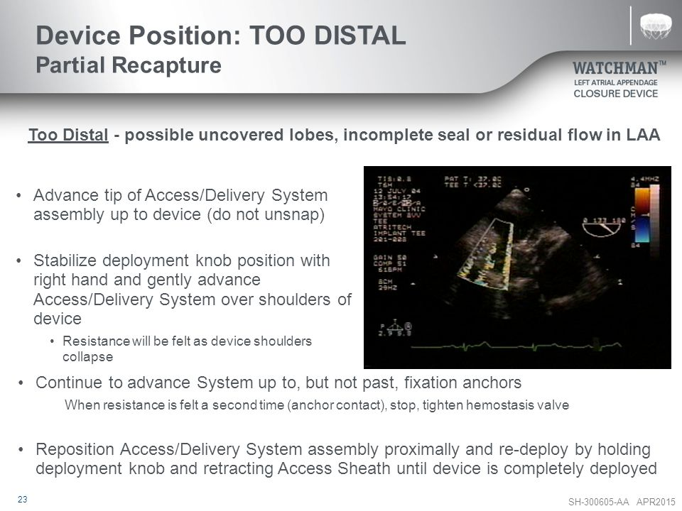 Device Position: TOO DISTAL Partial Recapture