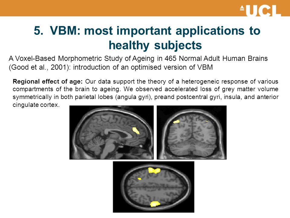 VBM: most important applications to healthy subjects