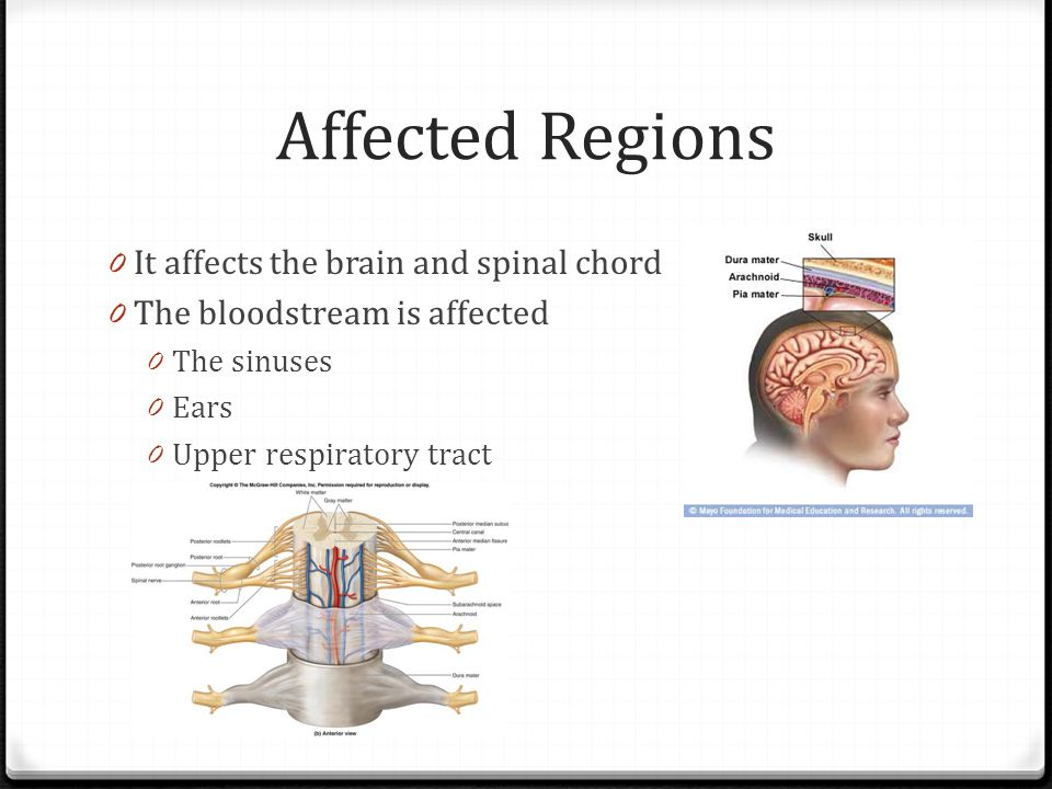 Affected Regions It affects the brain and spinal chord