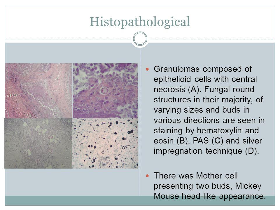 Histopathological