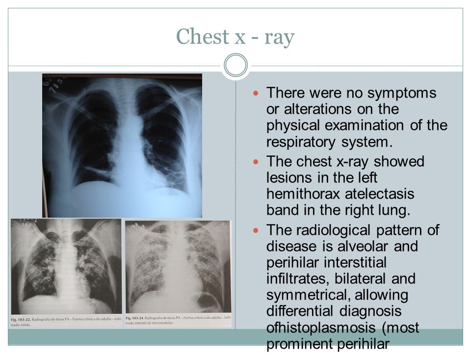 Chest x - ray There were no symptoms or alterations on the physical examination of the respiratory system.