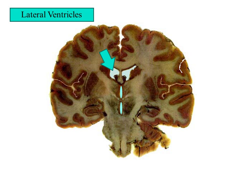 Lateral Ventricles