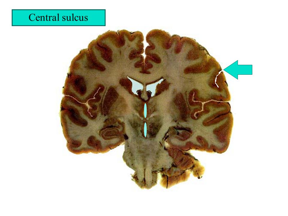 Central sulcus